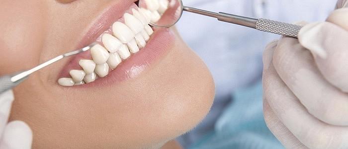 Mit konsequenter Dentalhygiene sind Sie stets auf der sicheren Seite