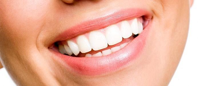 Veneers – ansprechendes Fournier für die Zähne